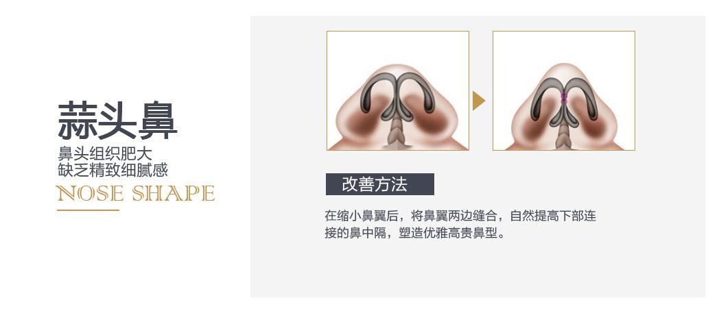 在缩小鼻翼后,将鼻翼两边缝合,自然提高下部连接的鼻中隔,塑造优雅高贵鼻型。