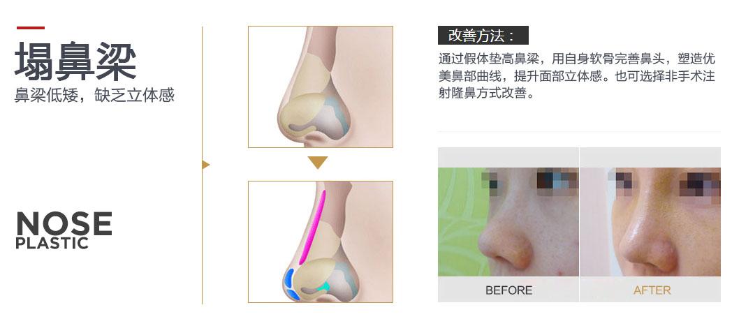 通过假体垫高鼻梁,用自体软骨完善鼻头,塑造优美鼻部曲线,提升面部立体感。也可以选择非手术注射隆鼻方式改善。