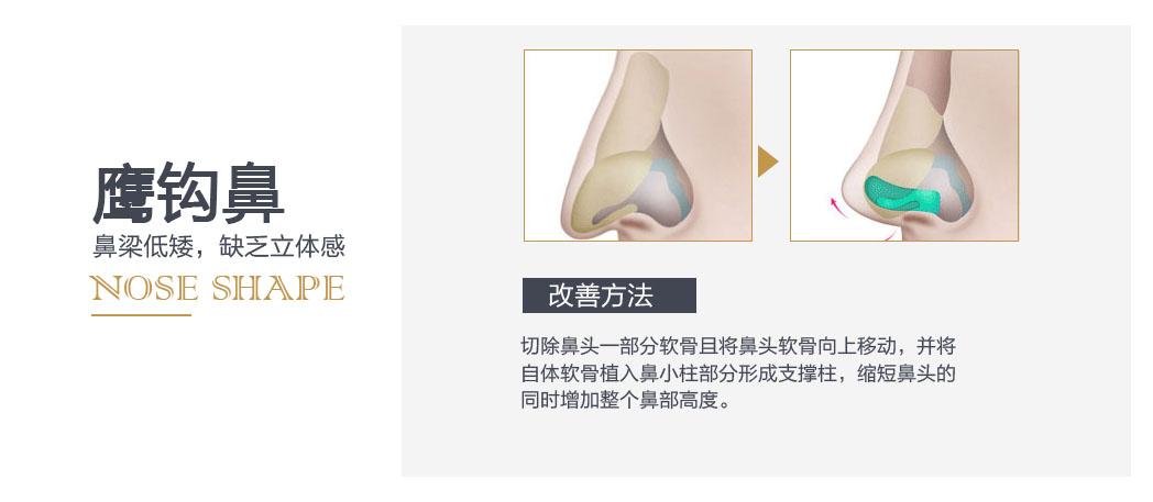 切除鼻头一部分软骨且将鼻头软骨向上移动,并将自体软骨植入鼻小柱部分形成支撑柱,缩短鼻头的同时增加整个鼻部高度。